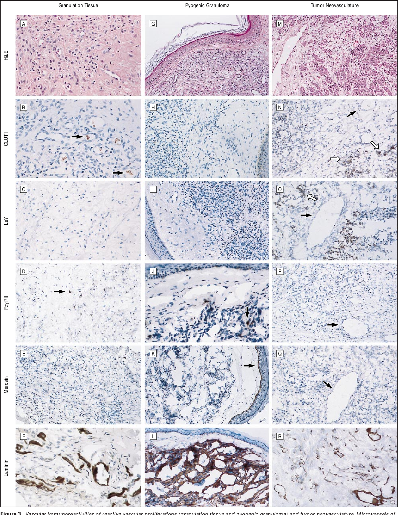 Figure 3. Vascular immunoreactivities of reactive vascular proliferations (granulation tissue and pyogenic granuloma) and tumor neovasculature. Microvessels of ischial decubitus ulcer granulation tissue (A-F), of an eruptive pyogenic granuloma from the cheek of an 8-year-old girl (G-L), and of a renal medullary carcinoma metastatic to ovary (M-R) were immunonegative for GLUT1 (B; H; and N, solid arrow), Lewis Y antigen (LeY) (C; I; and O, solid arrow), FcgRII (D; J; and P, arrow), and merosin (E; K; and Q, arrow). There was normal antigenicity for laminin in vascular basement membranes (C, L, R), for merosin in epidermal basement membranes (K, arrow), for CD31 in endothelia (not shown), for GLUT1 in erythrocytes (B, arrows; and H) and in keratinocytes (H), and for FcgRII in tissue macrophages (D and J, arrows). Carcinoma cells were focally immunopositive for GLUT1 (N, open arrows) and LeY (O, open arrow). H&E indicates hematoxylin-eosin. Original magnifications 3200 (C-E, G-O, Q, R) or 3400 (A, B, F, P).
