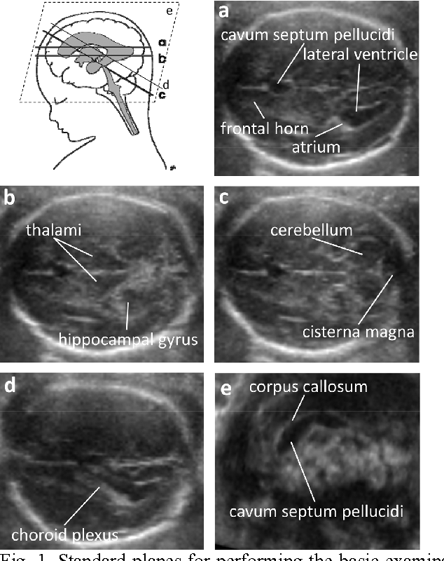 Automatic Measurement Of Fetal Head Structures Using Ultrasound