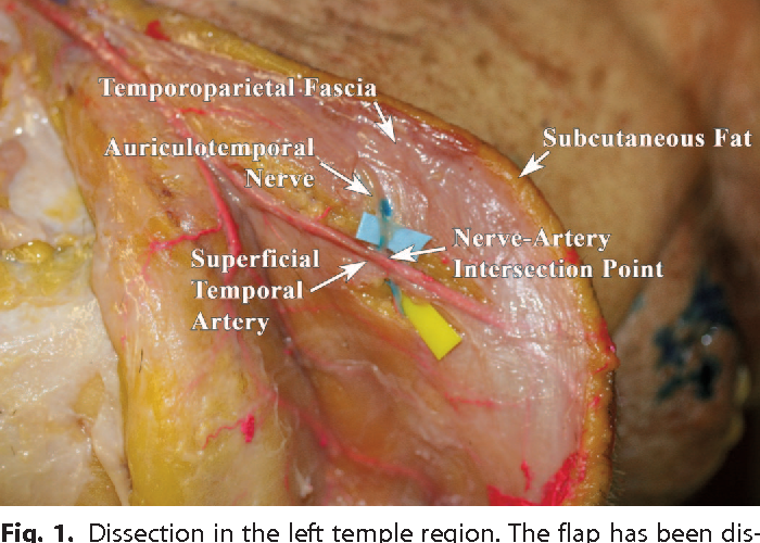 Anatomy Of The Auriculotemporal Nerve Variations In Its
