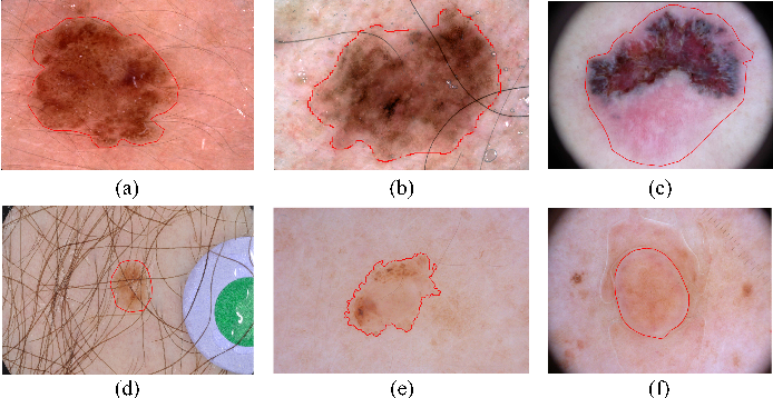 Figure 1 for Semi- and Weakly Supervised Directional Bootstrapping Model for Automated Skin Lesion Segmentation