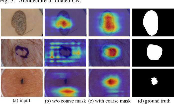 Figure 4 for Semi- and Weakly Supervised Directional Bootstrapping Model for Automated Skin Lesion Segmentation