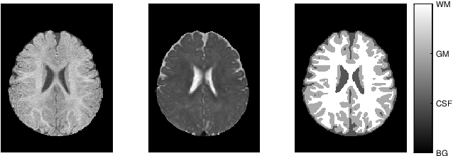 Figure 1 for Global Deep Learning Methods for Multimodality Isointense Infant Brain Image Segmentation