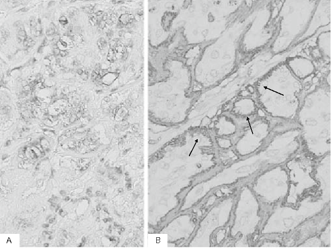 Fig. 3. A Cytoplasm of tumor cells positive for thyroglobulin. B Hyalinized materials exhibiting strong positivity on anticollagen type VI antibody staining, with a peculiar fi liform pattern (arrows). A, B ×400