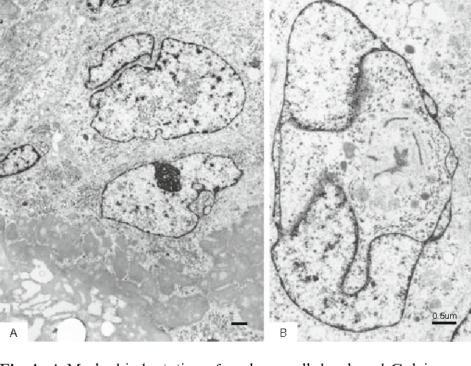 Fig. 4. A Marked indentation of nucleus, well-developed Golgi apparatus, and thin fi ne cytoplasmic processes embedded in hyalinized mass. B Pseudonuclear inclusion. Bar A 1 μm