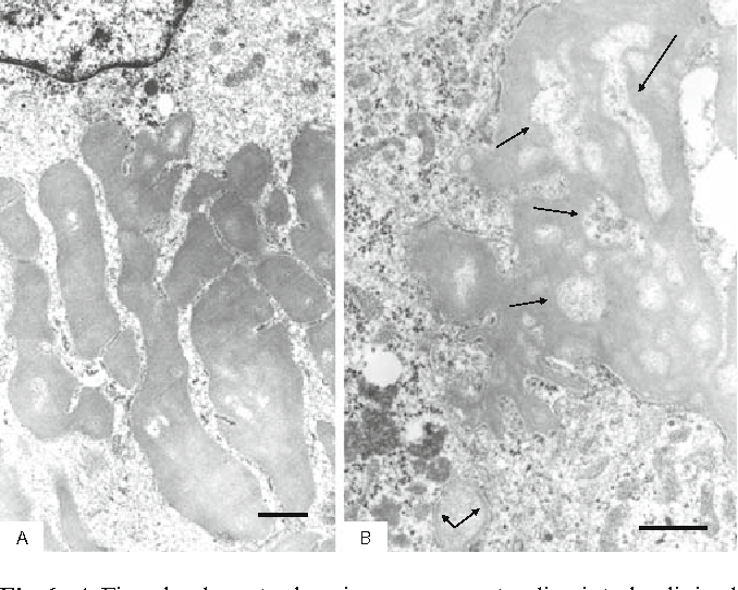 Fig. 6. A Fine slender cytoplasmic processes extending into hyalinized mass, exhibiting a fi liform pattern. B Higher magnifi cation of degenerated vacuolar cytoplasmic processes. Bars 1 μm