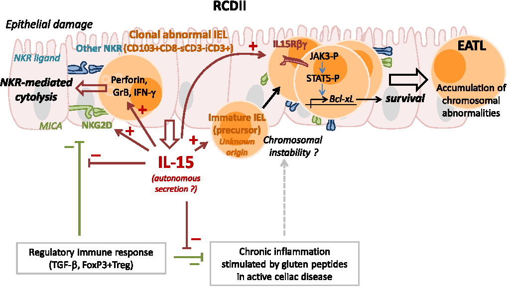Figure 2 from Refractory celiac disease: from bench to ...