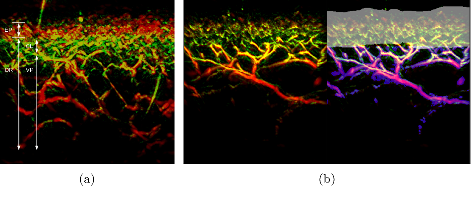Figure 1 for A distance-based loss for smooth and continuous skin layer segmentation in optoacoustic images