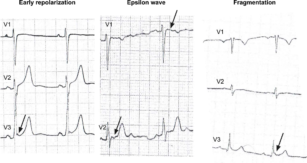 Figure 2 from ECG is not a reliable predictor of sudden
