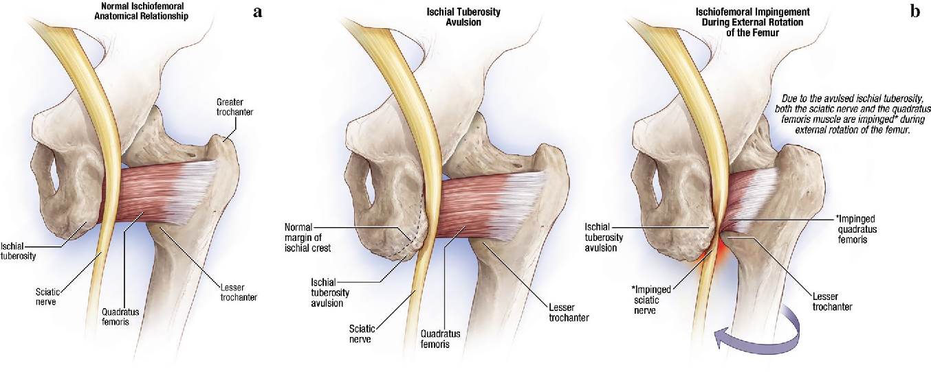 Ischiofemoral impingement and hamstring dysfunction as a potential ...