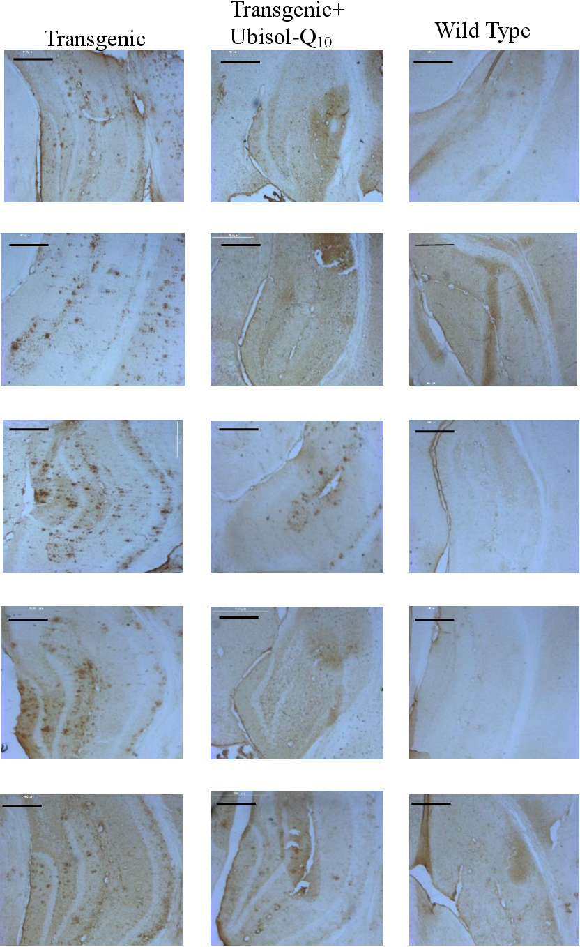 Figure 1. Immunohistochemistry with anti-amyloid-beta antibody to study the effects of prophylactic treatment with Ubisol-Q10 in an APP/PS1 transgenic AD mouse model. Each image represents a brain section from an individual mouse. There is greater levels of Aβ plaque deposit in the transgenic untreated group whereas three out of the five mice that received prophylactic treatment with Ubisol-Q10 showed near complete removal of plaque. Two mice showed a drastic decrease in the extent of plaque deposition. Wild type mice do not show any positive staining for amyloid plaque deposition. Scale bar = 500μm.