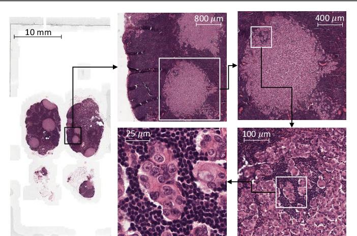 Figure 1 for Representation-Aggregation Networks for Segmentation of Multi-Gigapixel Histology Images