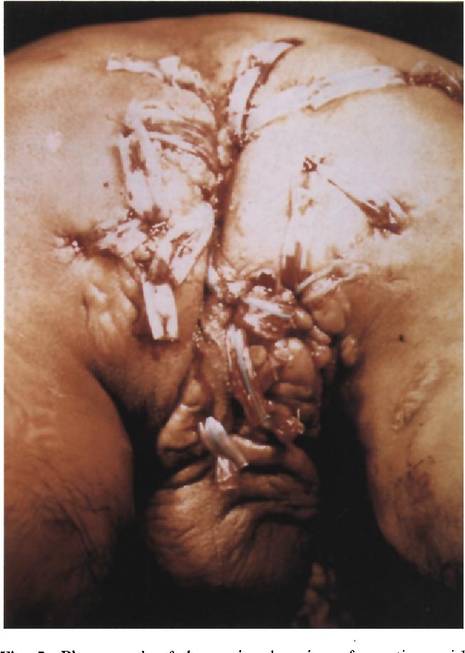 Man massaging woman's ass photo
