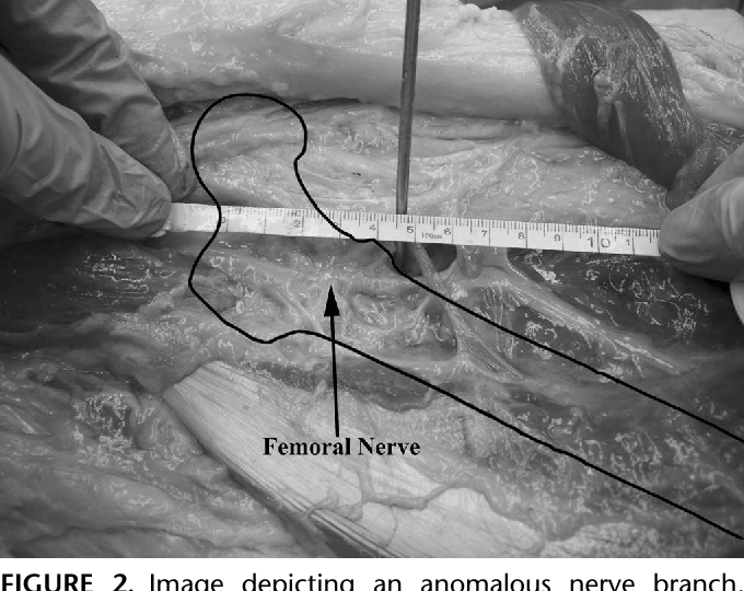 The Safe Zone For External Fixator Pins In The Femur Semantic Scholar