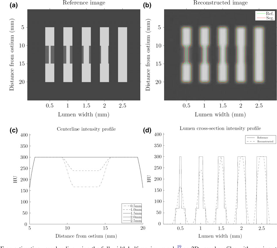 Figure 1 for Improving CCTA based lesions' hemodynamic significance assessment by accounting for partial volume modeling in automatic coronary lumen segmentation