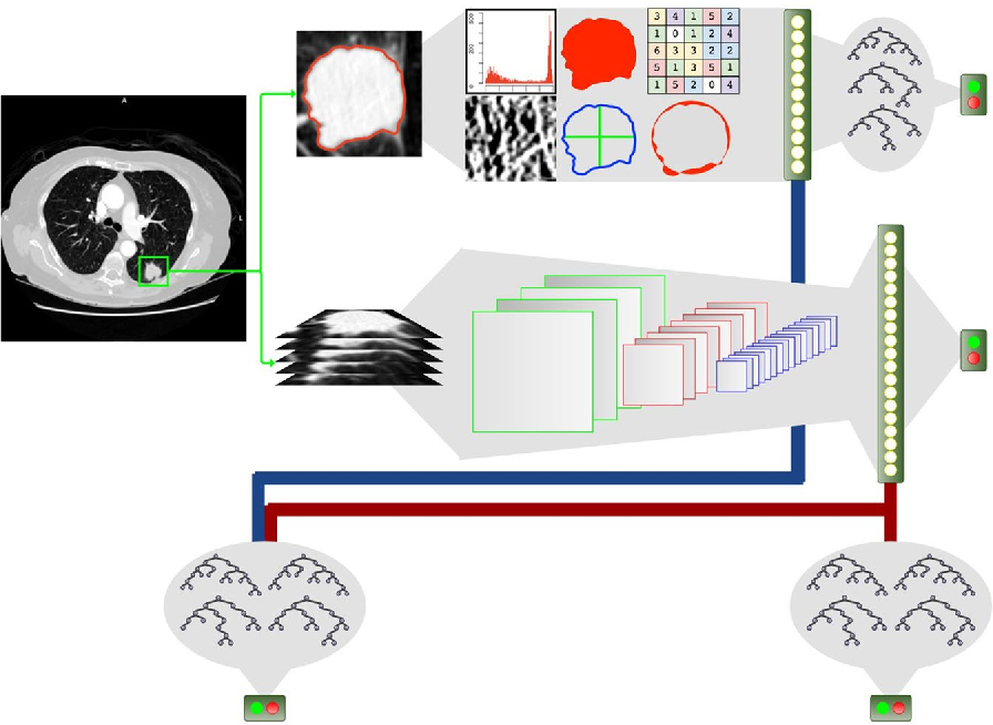 Figure 1 for Highly accurate model for prediction of lung nodule malignancy with CT scans