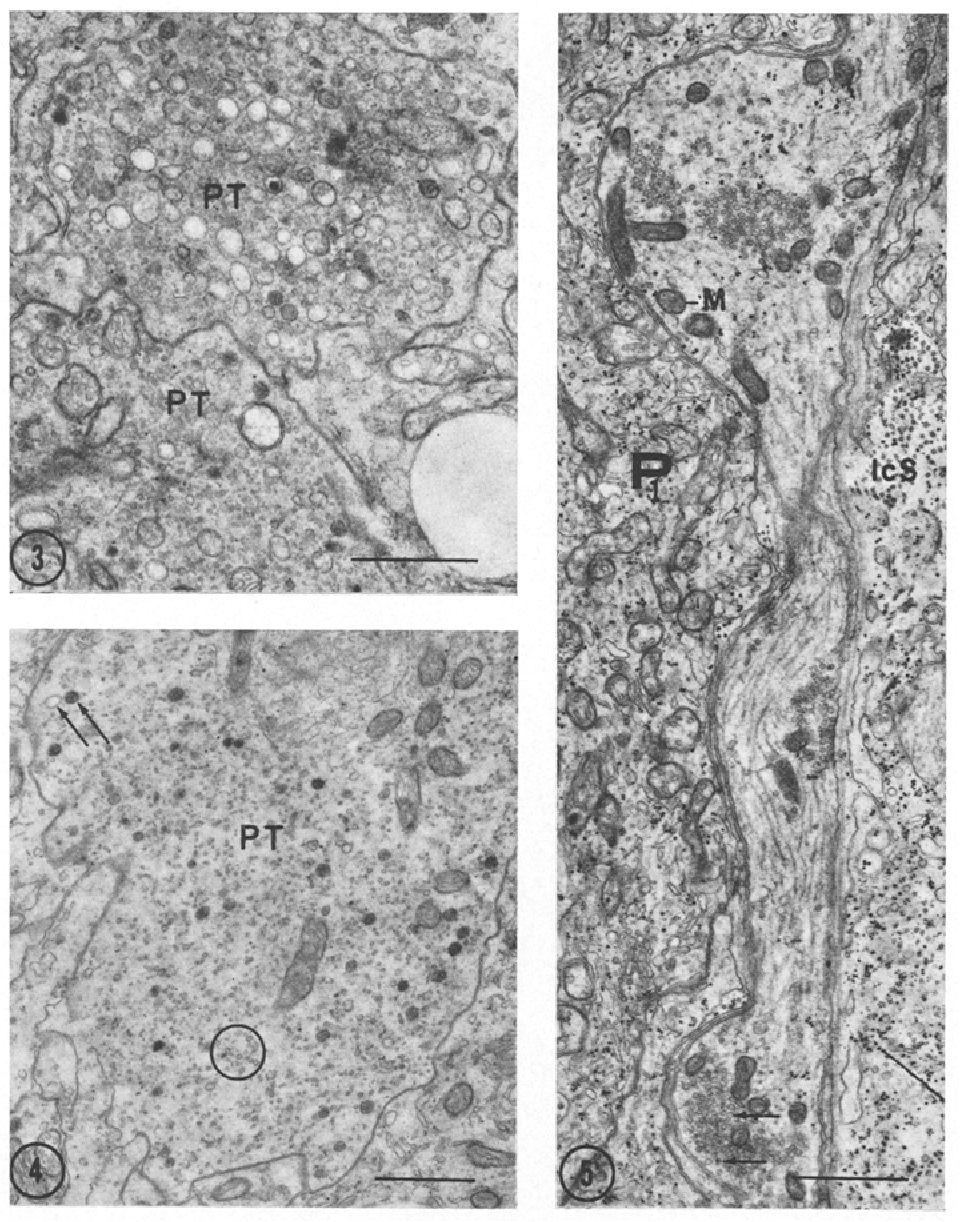 Fig. 3. Terminal portions of two pinealocyte processes (PT) containing vesicles of various sizes and densities. • 16400