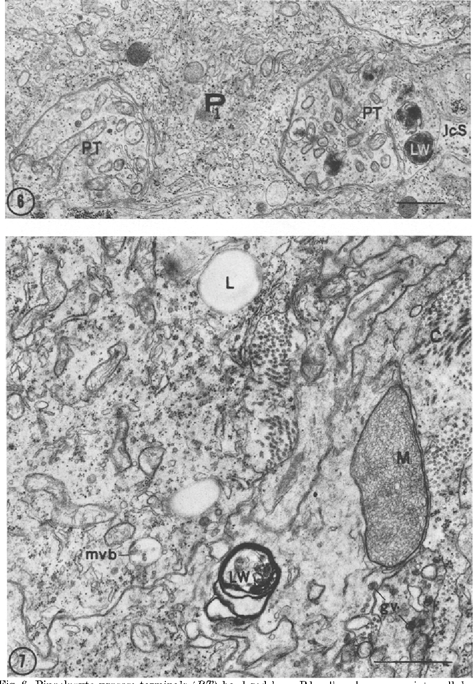Fig. 6. Pinealocyte process-terminals (PT) bordered by a P 1 cell and a narrow intercellular space (ITS). The terminal at the right contains several small lamellar whorls (LW). • 12700