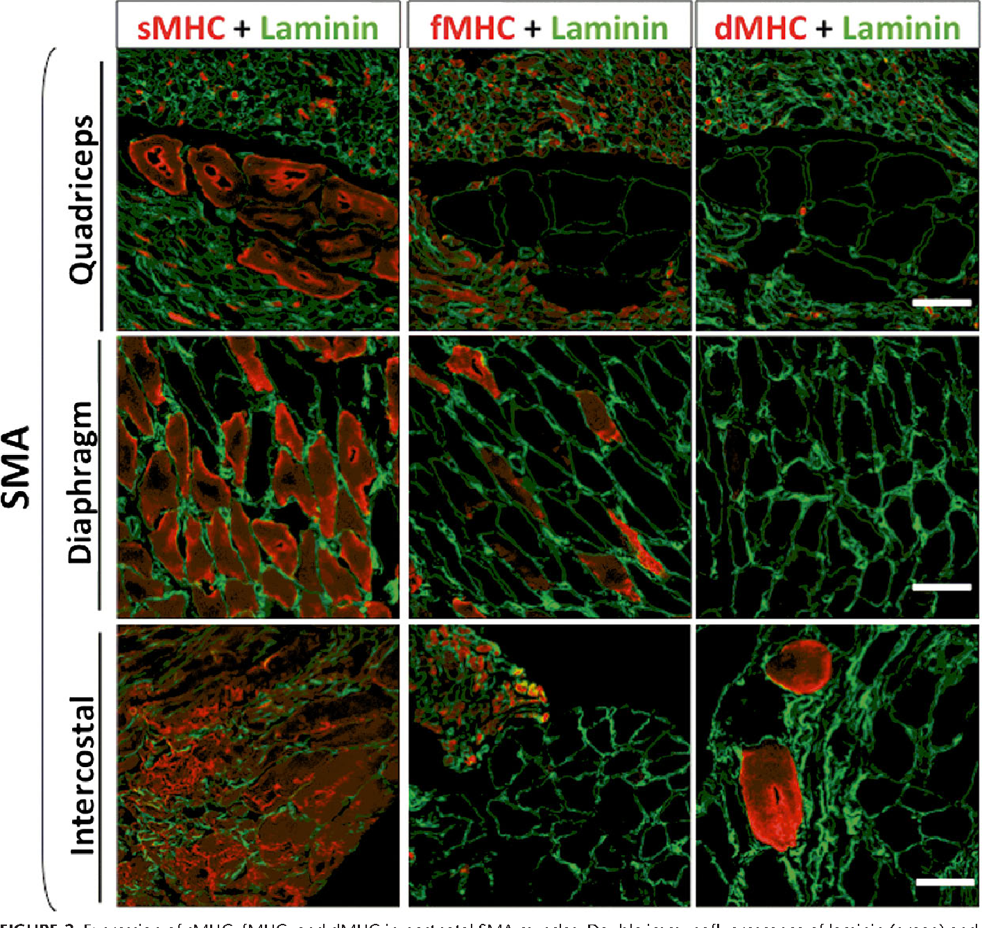 FIGURE 2. Expression of sMHC, fMHC, and dMHC in postnatal SMA muscles. Double immunofluorescence of laminin (green) and slow, fast, or developmental myosin (red) in quadriceps, diaphragm, and intercostal postnatal SMA muscles. Note the different patterns of expression in the different muscles analyzed. In diaphragm and intercostal SMA muscles, slow fibers predominate, whereas in quadriceps muscles, hypertrophic fibers show a slow phenotype and atrophic fibers show a mosaic between slow and fast patterns. Scale bar = 50 Km.
