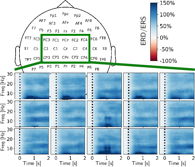 Figure 2 for On the use of generative deep neural networks to synthesize artificial multichannel EEG signals