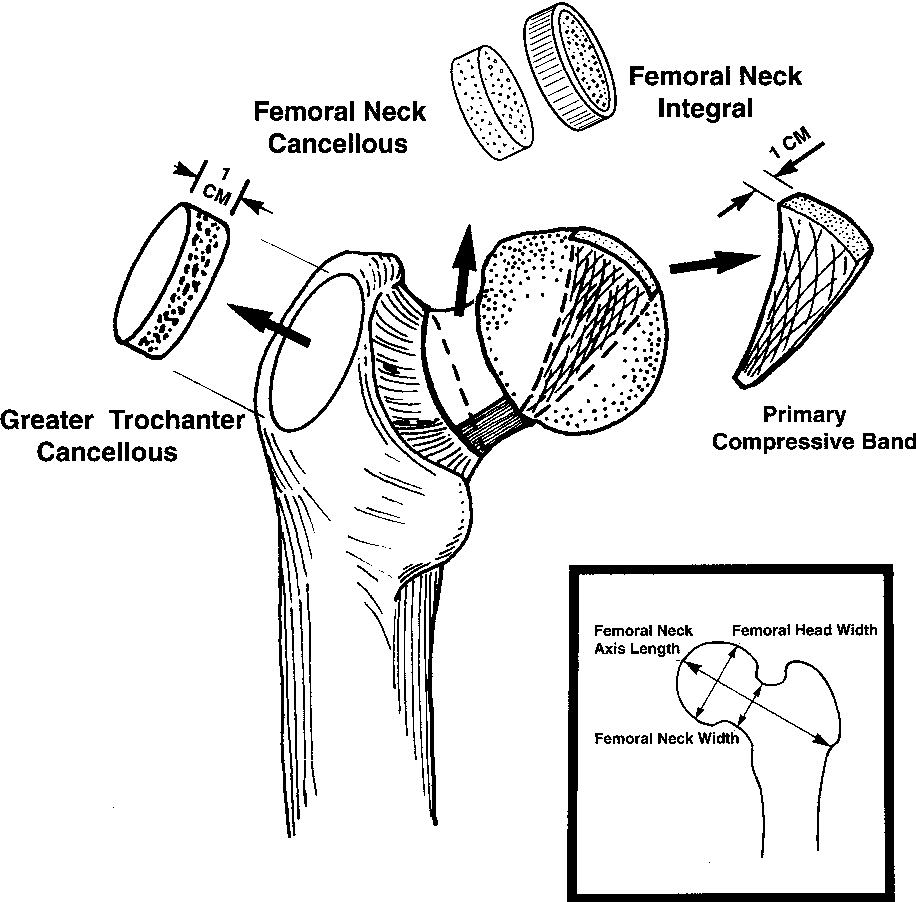 Bone density distribution and gender dominate femoral neck fracture figure 1 ccuart Image collections