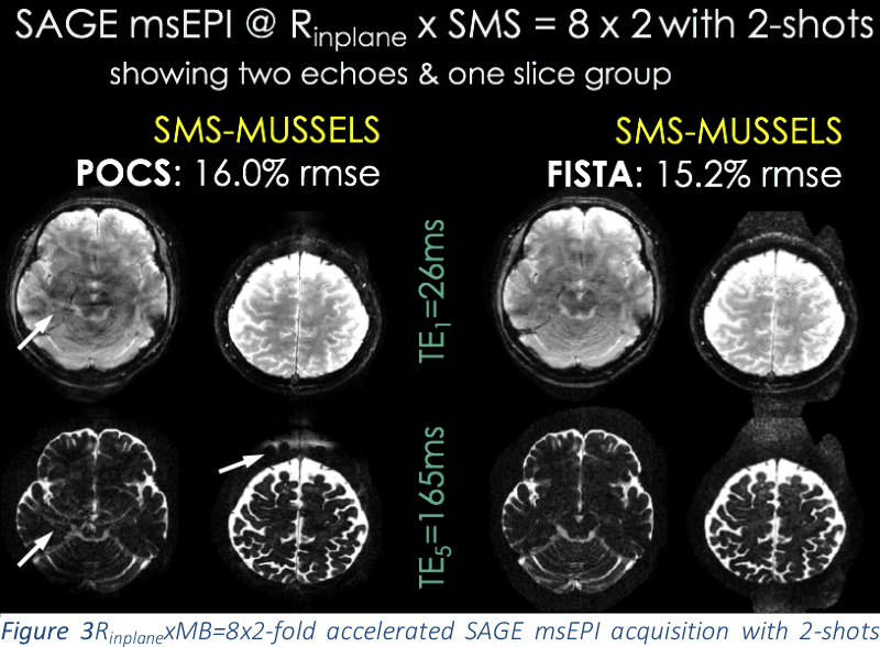 Figure 3 for Highly Accelerated Multishot EPI through Synergistic Combination of Machine Learning and Joint Reconstruction
