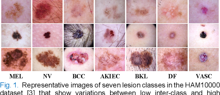 Figure 1 for Single Model Deep Learning on Imbalanced Small Datasets for Skin Lesion Classification
