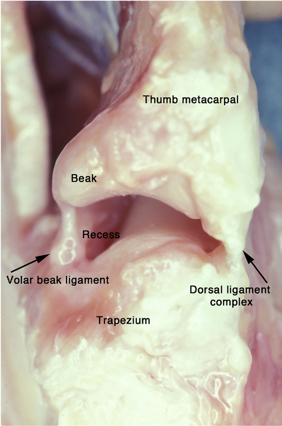 Figure 1 From Current Concepts Of The Anatomy Of The Thumb