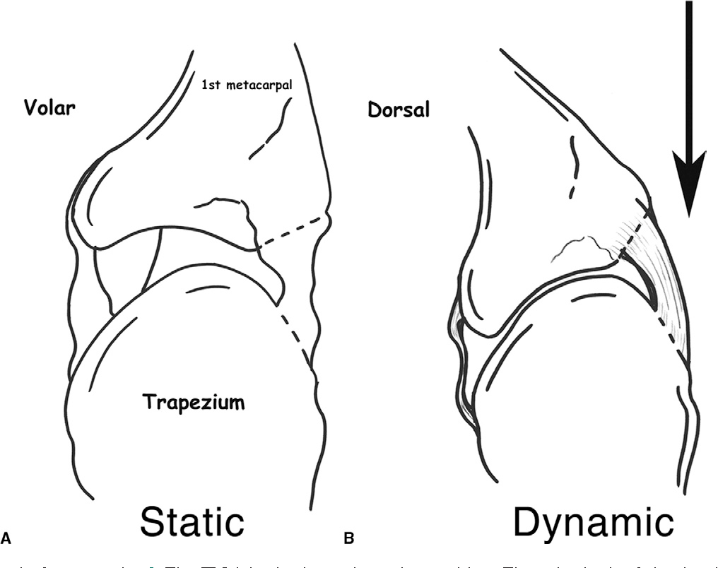 Figure 7 From Current Concepts Of The Anatomy Of The Thumb