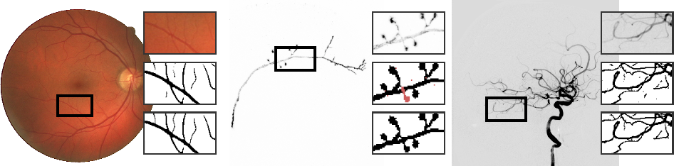 Figure 1 for The Minimum Cost Connected Subgraph Problem in Medical Image Analysis