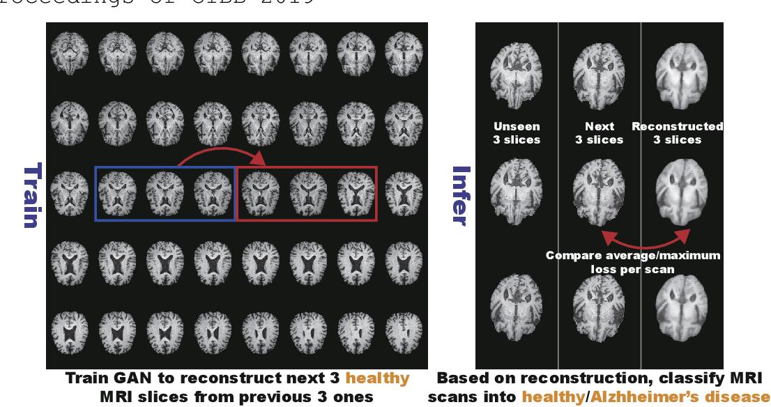 Figure 1 for GAN-based Multiple Adjacent Brain MRI Slice Reconstruction for Unsupervised Alzheimer's Disease Diagnosis