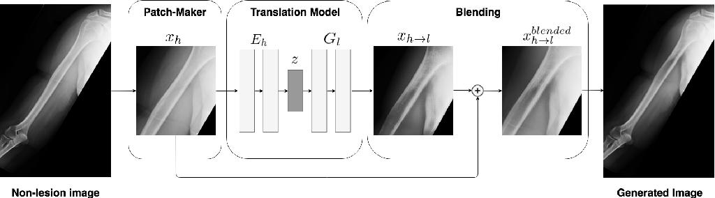 Figure 1 for Generative Image Translation for Data Augmentation of Bone Lesion Pathology