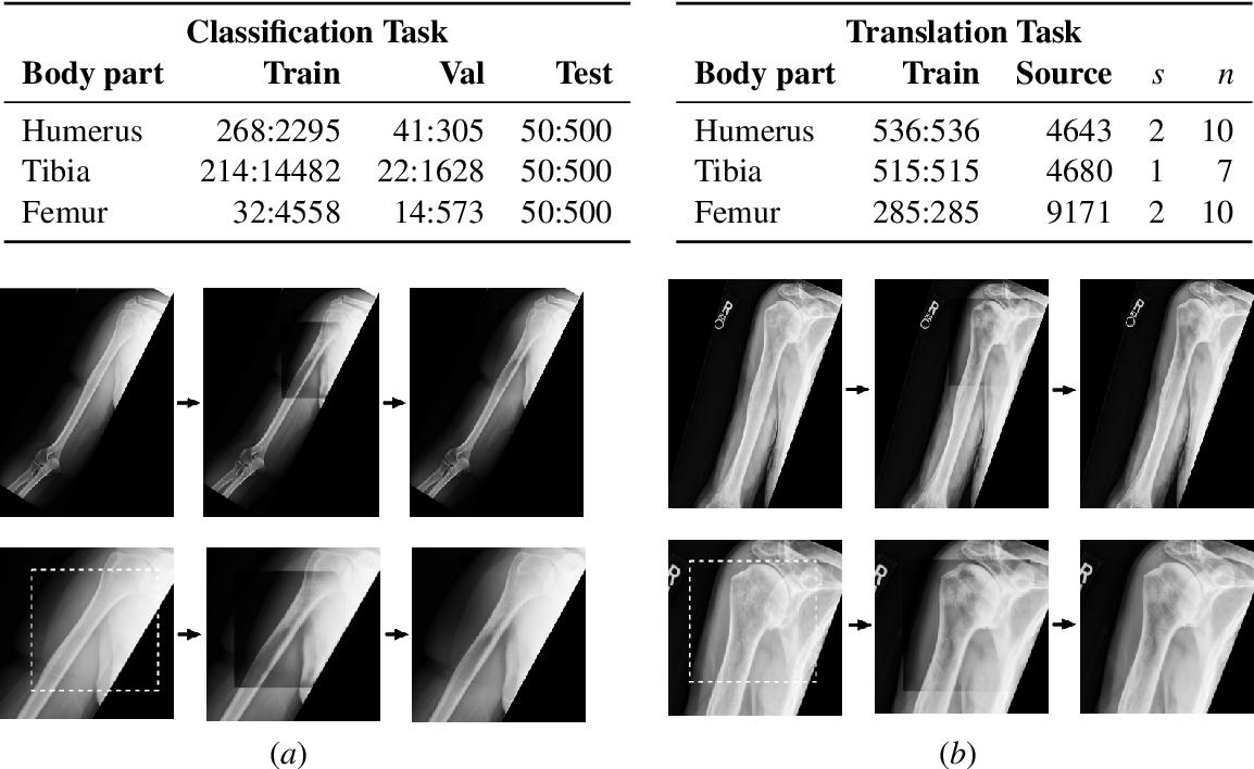 Figure 4 for Generative Image Translation for Data Augmentation of Bone Lesion Pathology