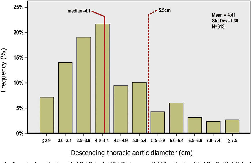 Figure 1 From Descending Aortic Diameter Of 55 Cm Or Greater Is Not