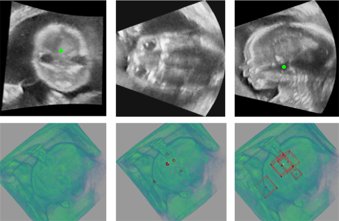 Figure 1 for Region Proposal Network with Graph Prior and IoU-Balance Loss for Landmark Detection in 3D Ultrasound
