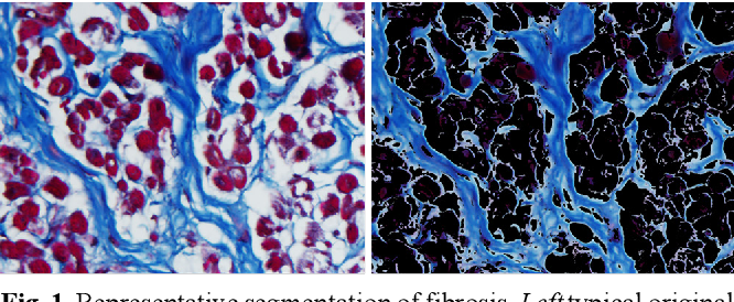 Figure 1 for Segmentation of histological images and fibrosis identification with a convolutional neural network