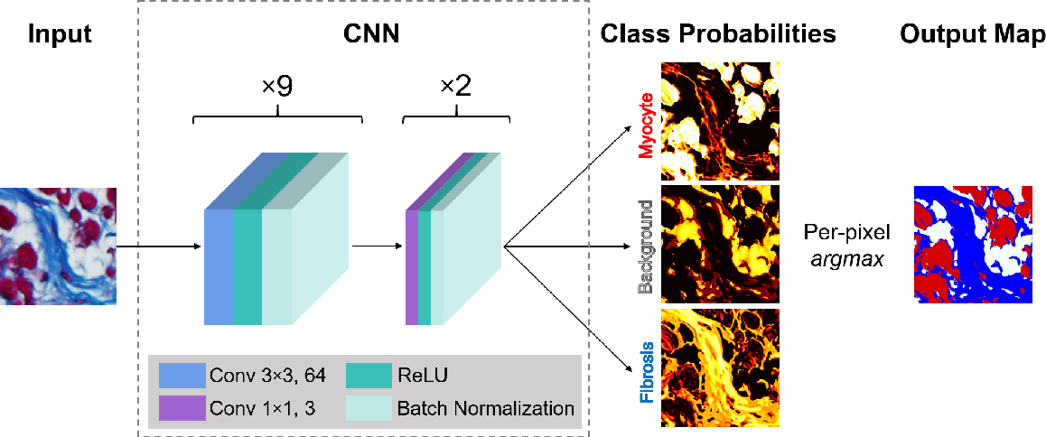 Figure 3 for Segmentation of histological images and fibrosis identification with a convolutional neural network