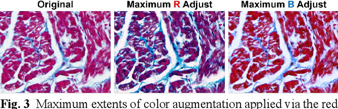 Figure 4 for Segmentation of histological images and fibrosis identification with a convolutional neural network
