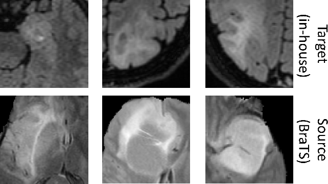 Figure 1 for Towards continuous learning for glioma segmentation with elastic weight consolidation