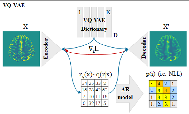 Figure 1 for Anomaly detection through latent space restoration using vector-quantized variational autoencoders
