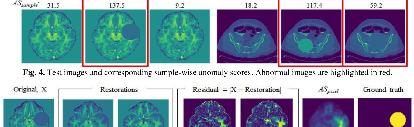 Figure 4 for Anomaly detection through latent space restoration using vector-quantized variational autoencoders