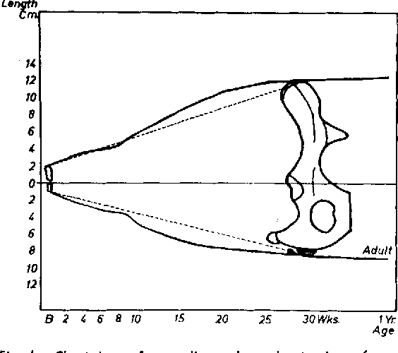 chart drawn from radiograph overlay tracings of onehalf of the pelvis of
