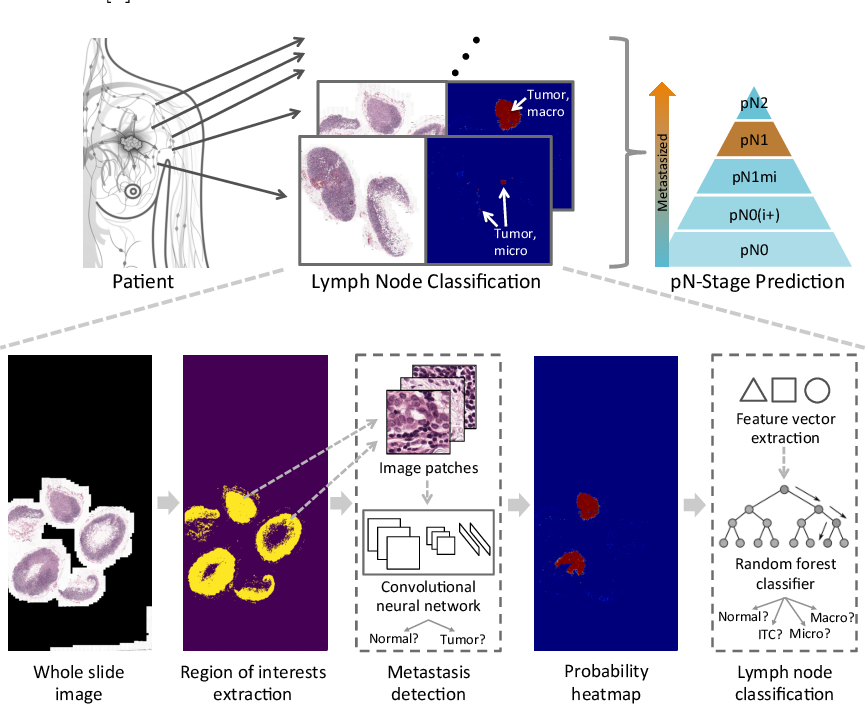 Figure 1 for A Robust and Effective Approach Towards Accurate Metastasis Detection and pN-stage Classification in Breast Cancer