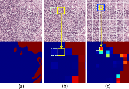 Figure 2 for A Robust and Effective Approach Towards Accurate Metastasis Detection and pN-stage Classification in Breast Cancer