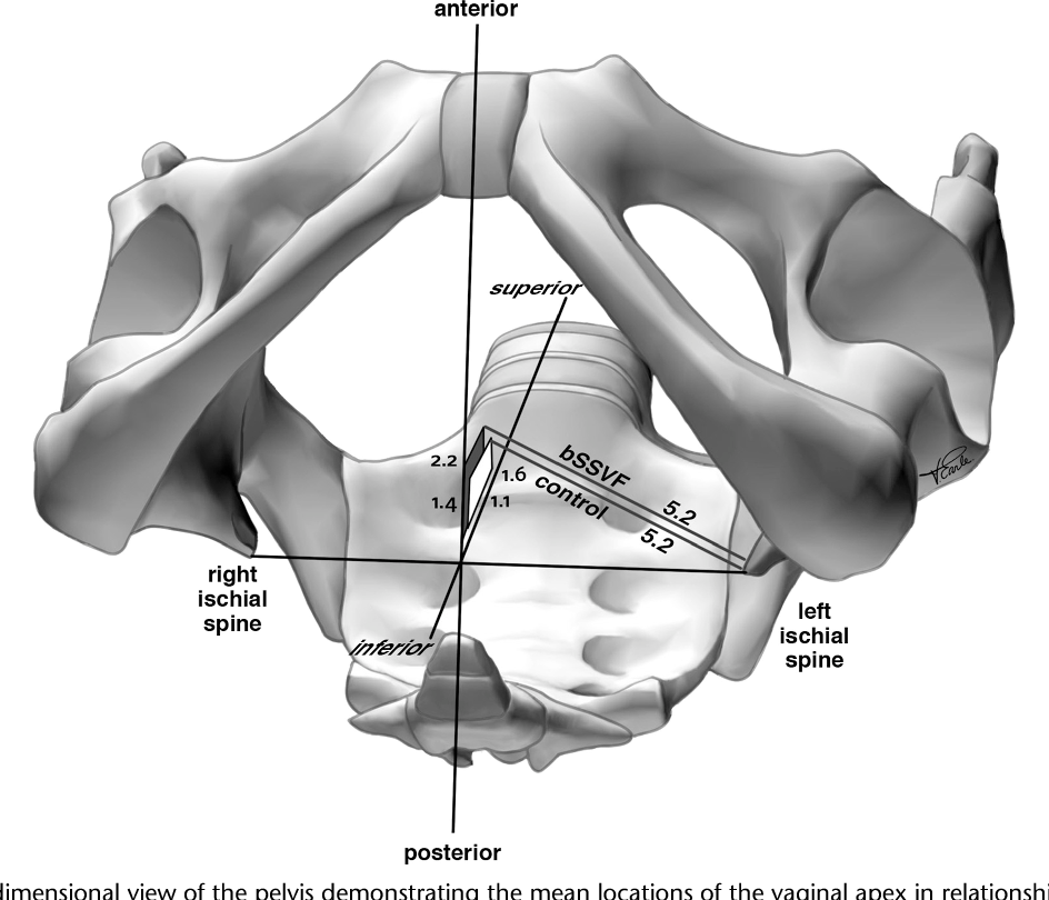 Does Bilateral Sacrospinous Fixation With Synthetic Mesh Recreate