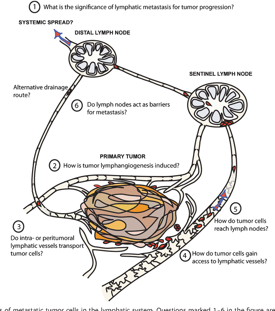Interaction Of Tumor Cells And Lymphatic Vessels In Cancer