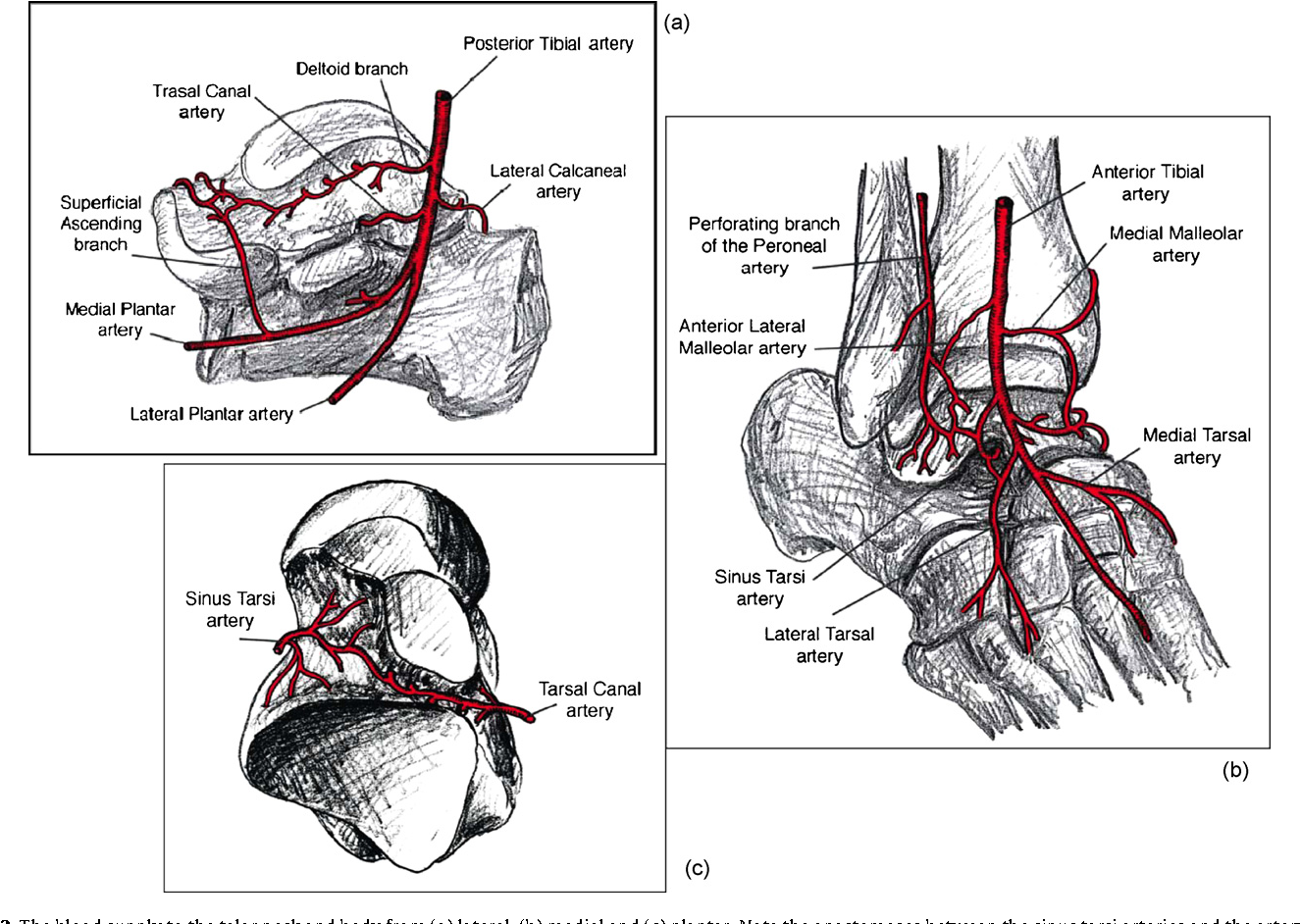 Figure 2 from Talar neck and body fractures. - Semantic Scholar