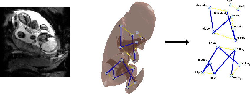 Figure 1 for Enhanced detection of fetal pose in 3D MRI by Deep Reinforcement Learning with physical structure priors on anatomy
