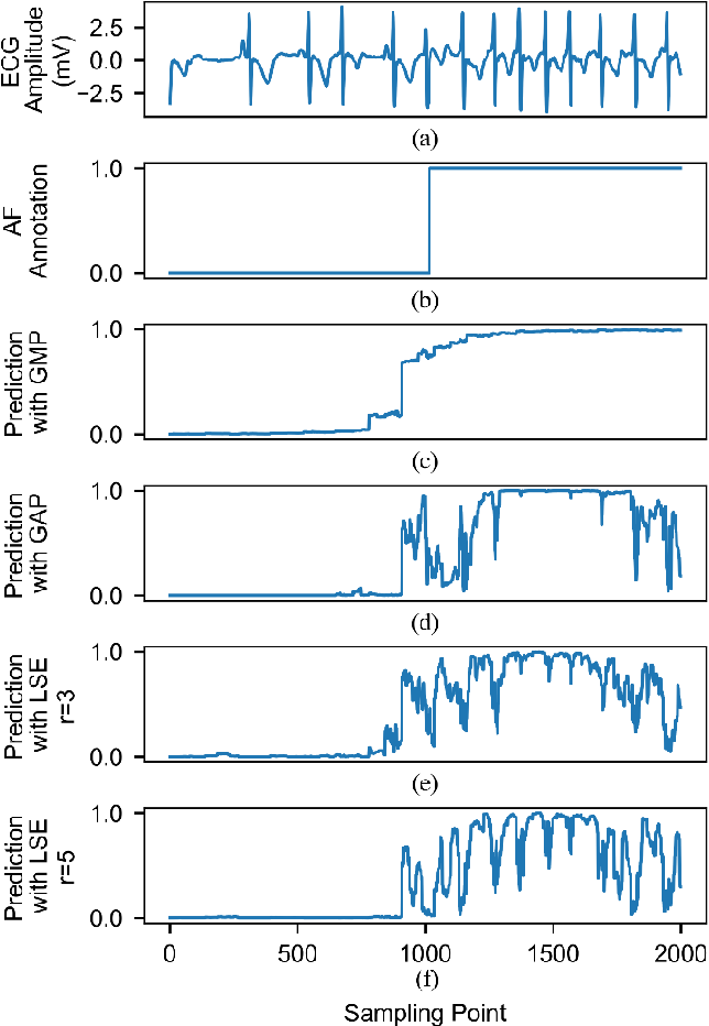 Figure 4 for Weakly Supervised Arrhythmia Detection Based on Deep Convolutional Neural Network
