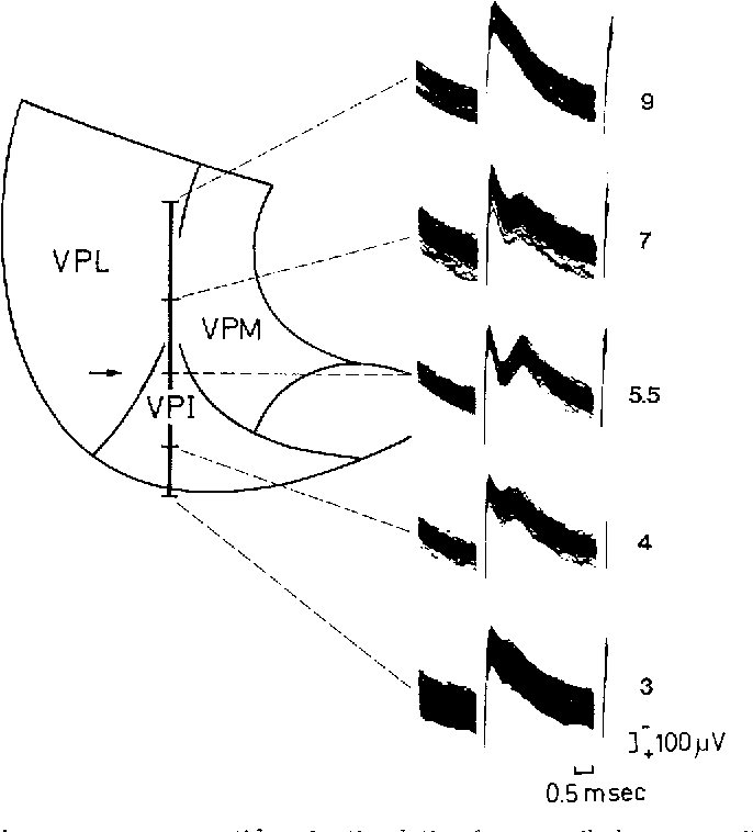 Fig. 5. Thal~mic responses upon antidromie stimulation from vestibular cortex. DorsoventrM penetration through the ventroposterior nuclei. Maximal antidromie field potential in the vestibular (dorsal) part of VPI (stereotaxic level +5.5). Latency 0.5 msec