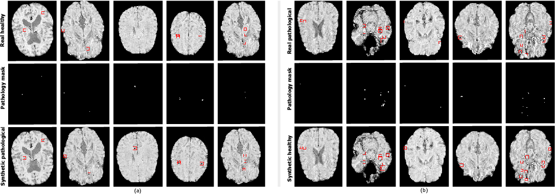 Figure 2 for Adversarial cycle-consistent synthesis of cerebral microbleeds for data augmentation